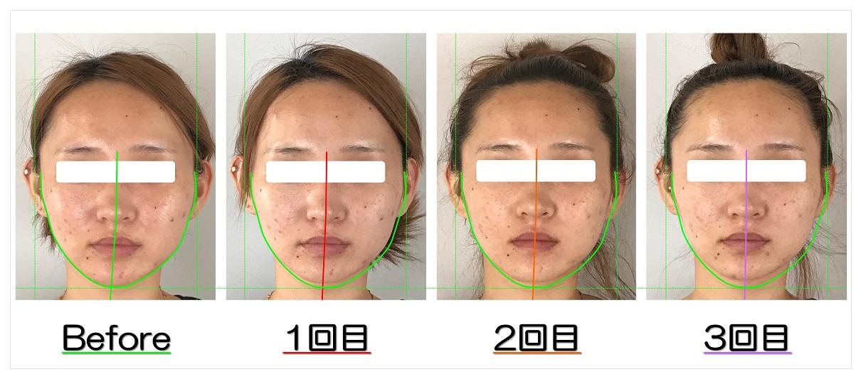 ビフォーアフター写真 | 滋賀守山市の小顔矯正エステ プリュムレーヴ | あごの歪みと頬骨の出っ張りが改善して左右対称の輪郭へ