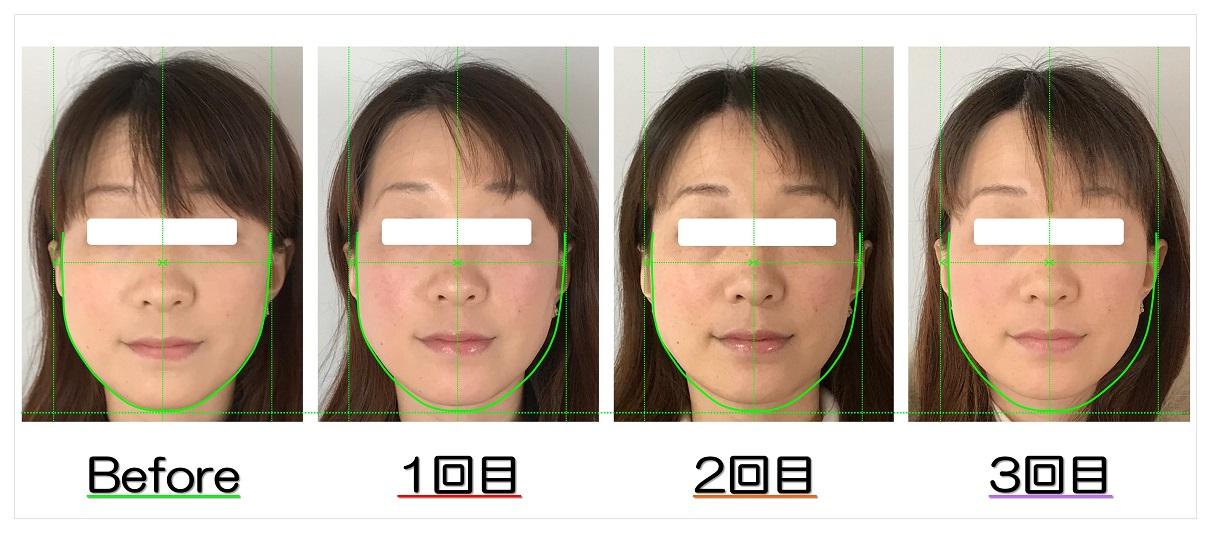 ビフォーアフター写真 | 滋賀守山市の小顔矯正エステ プリュムレーヴ | 頬骨の上がりとたるみ改善で、輪郭が引締まり左右対称に