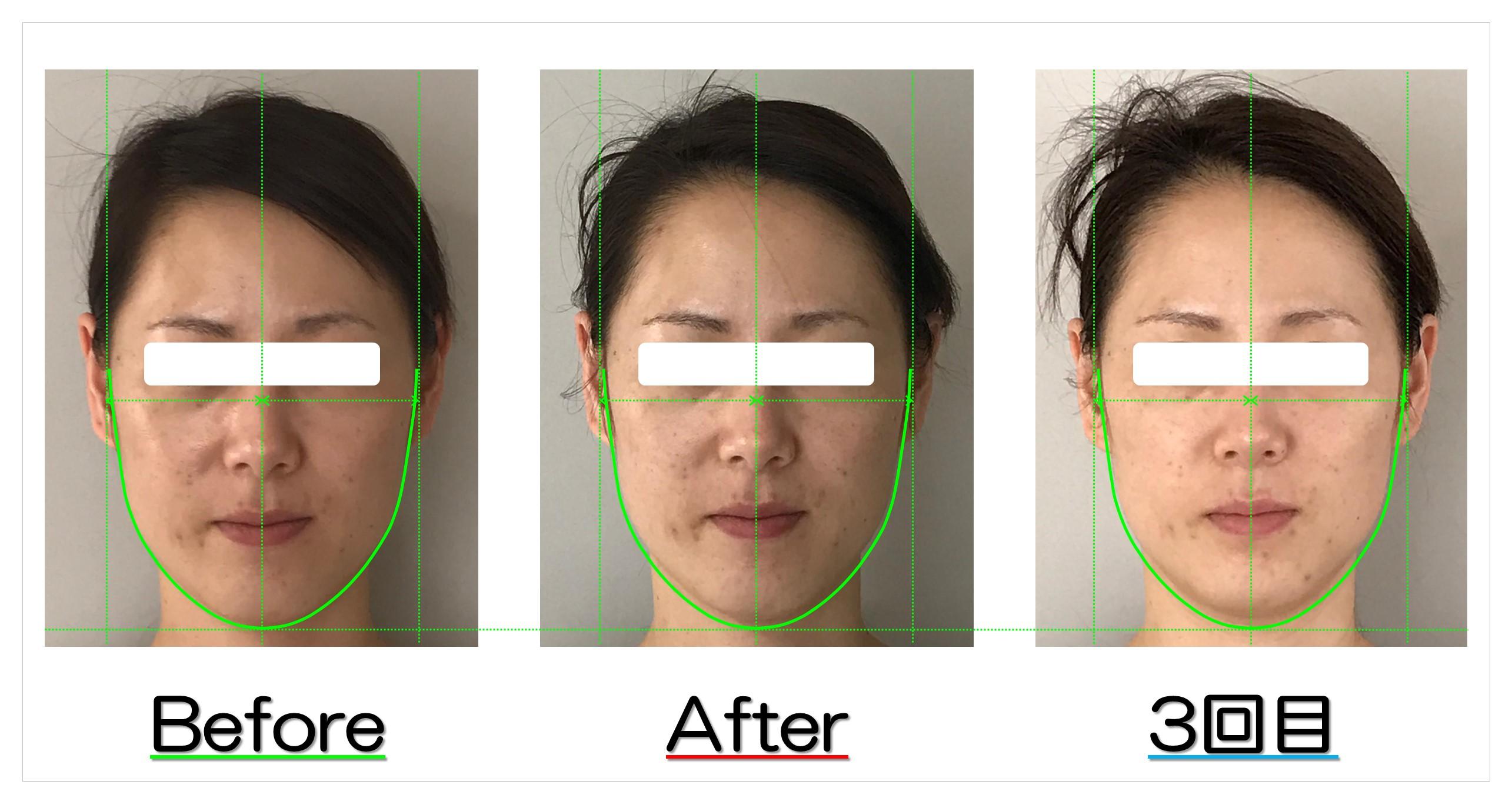 頬の位置が上がり面長が改善! | 滋賀守山市の小顔矯正エステ