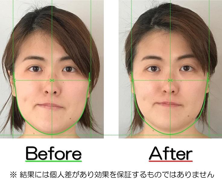 BeforeAfter写真のお渡し | 滋賀県守山市の痛くない小顔矯正&エイジングケア専門サロン