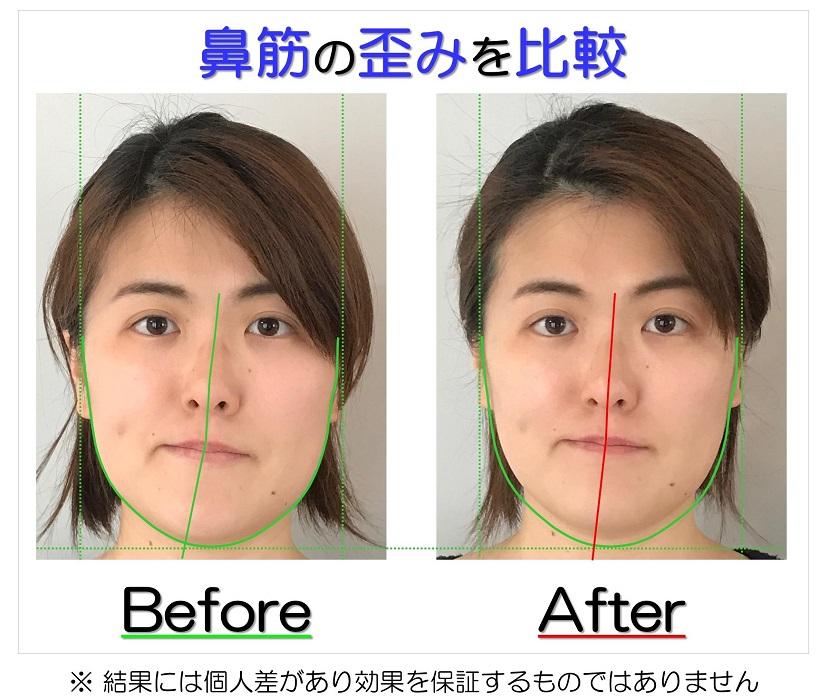 滋賀県守山市のフェイシャルエステ ビフォーアフター写真のお渡し 鼻筋の歪みを比較