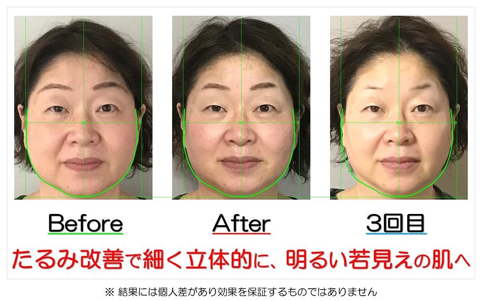 滋賀県守山市の痛くない小顔矯正&エイジングケア専門サロン プリュムレーヴ たるみ改善で細く立体的に、明るい若見えの肌へ