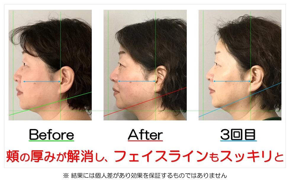 滋賀県守山市の痛くない小顔矯正&エイジングケア専門サロン プリュムレーヴ 頬の厚みが解消し、フェイスラインもスッキリと
