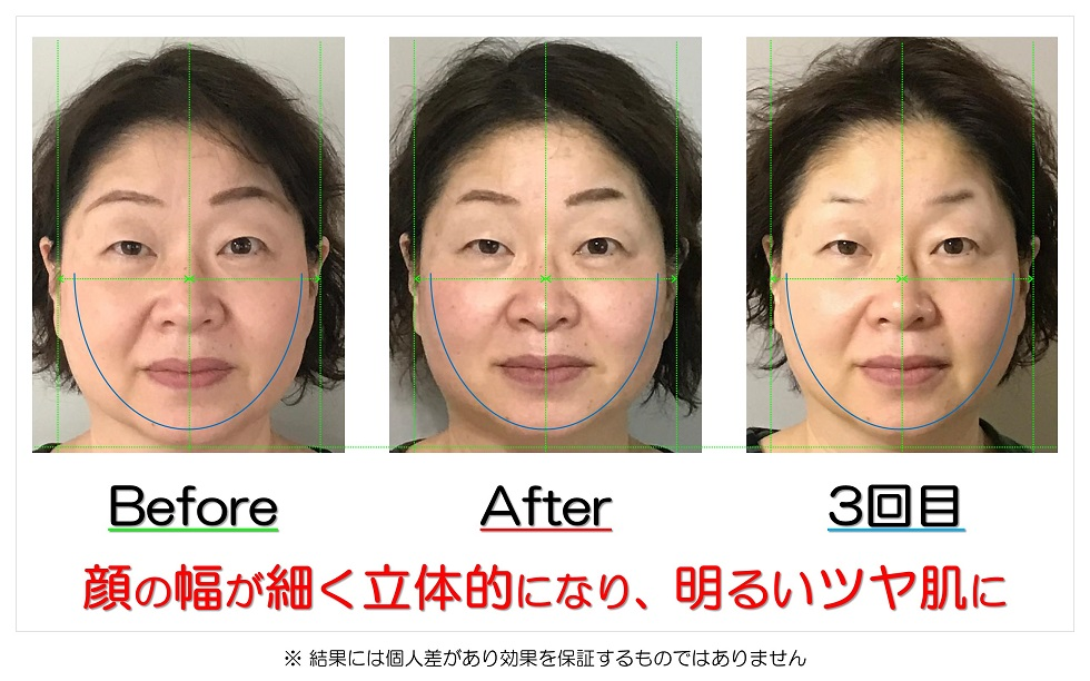 滋賀県守山市のフェイシャルエステ 顔の幅が細く立体的になり、明るいツヤ肌に
