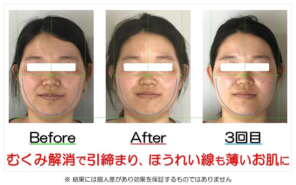 滋賀県守山市の痛くない小顔矯正&エイジングケア専門サロン プリュムレーヴ むくみ解消で引締まり、ほうれい線も薄いお肌に