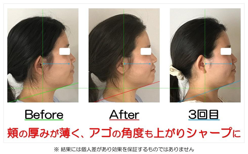 滋賀県守山市の痛くない小顔矯正&エイジングケア専門サロン プリュムレーヴ 頬の厚みが薄く、アゴの角度も上がりシャープに