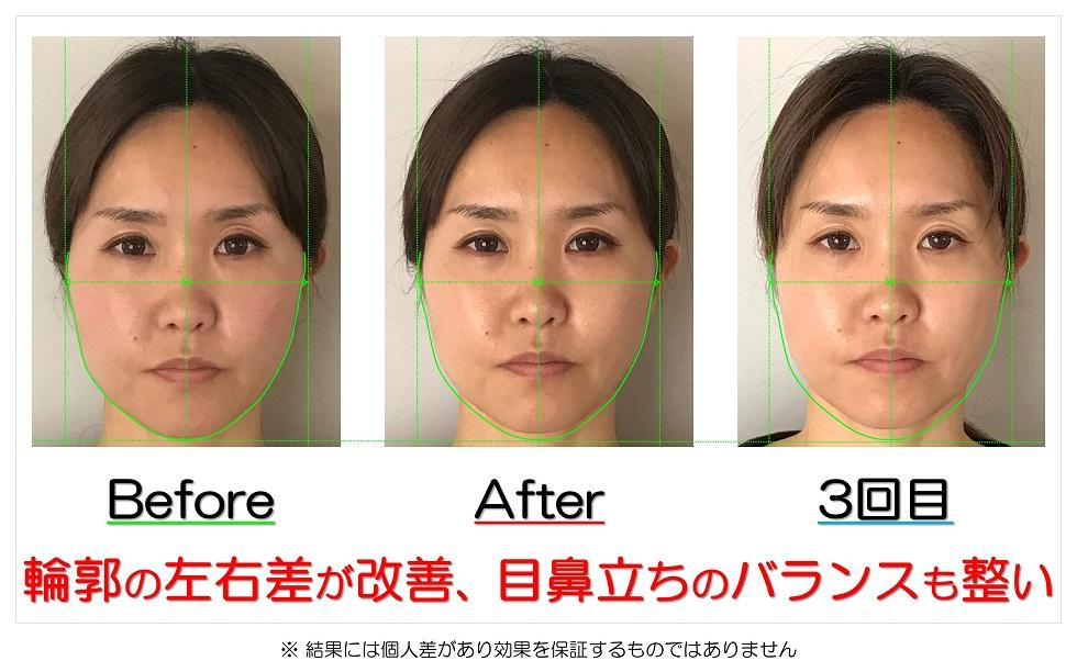 滋賀県守山市のフェイシャルエステ 輪郭の左右差が改善、目鼻立ちのバランスも整い