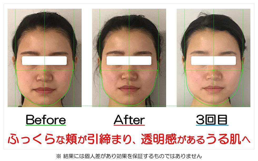 滋賀県守山市の痛くない小顔矯正&エイジングケア専門サロン プリュムレーヴ ふっくらな頬が引締まり、透明感があるうる肌へ