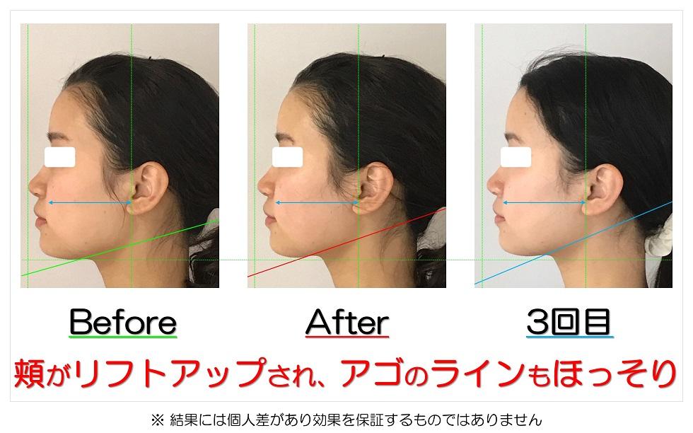 滋賀県守山市の痛くない小顔矯正&エイジングケア専門サロン プリュムレーヴ 頬がリフトアップされ、アゴのラインもほっそり