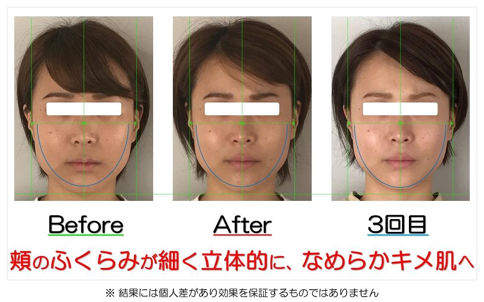 滋賀県守山市の痛くない小顔矯正&エイジングケア専門サロン プリュムレーヴ 頬のふくらみが細く立体的に、なめらかキメ肌へ