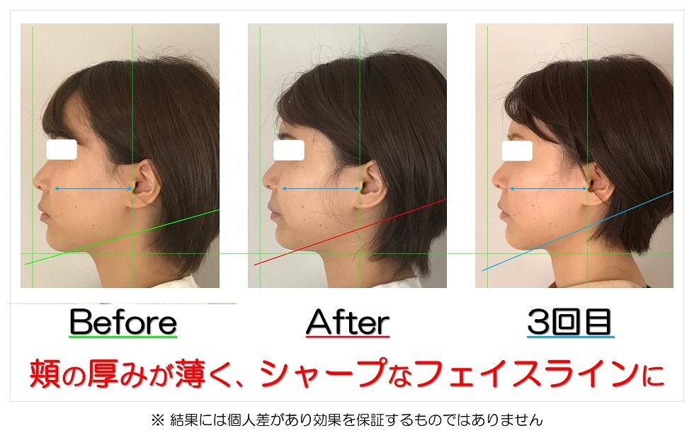 滋賀県守山市の痛くない小顔矯正&エイジングケア専門サロン プリュムレーヴ 頬の厚みが薄く、シャープなフェイスラインに