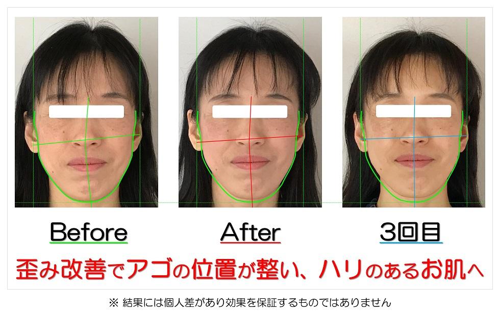 滋賀県守山市の痛くない小顔矯正&エイジングケア専門サロン プリュムレーヴ 歪み改善でアゴの位置が整い、ハリのあるお肌へ