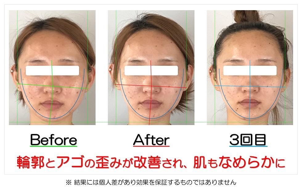 滋賀県守山市の痛くない小顔矯正&エイジングケア専門サロン プリュムレーヴ 輪郭とアゴの歪みが改善され、肌もなめらかに