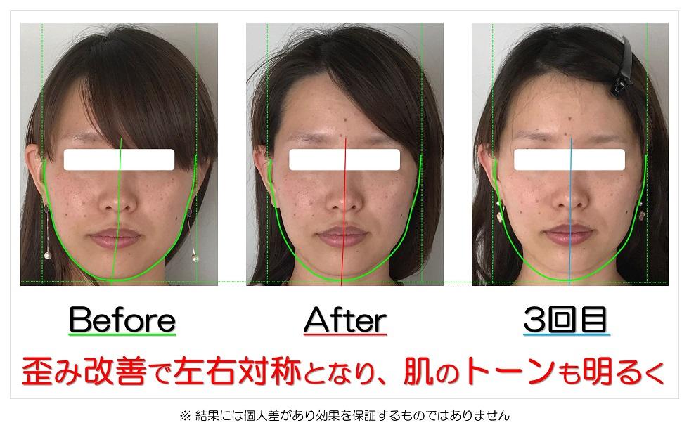 滋賀県守山市のフェイシャルエステ 歪み改善で左右対称となり、肌のトーンも明るく