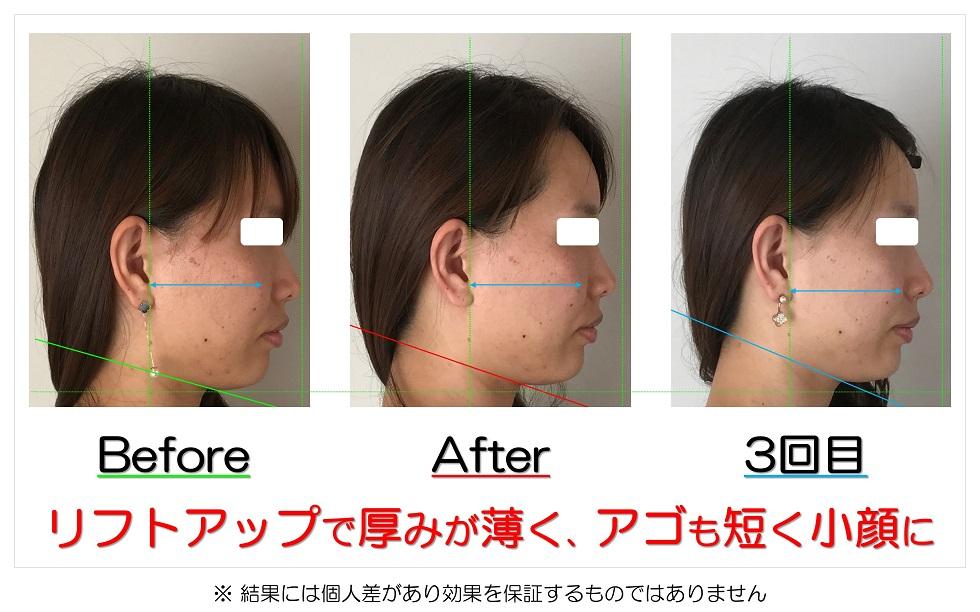 滋賀県守山市の痛くない小顔矯正&エイジングケア専門サロン プリュムレーヴ リフトアップで厚みが薄く、アゴも短く小顔に