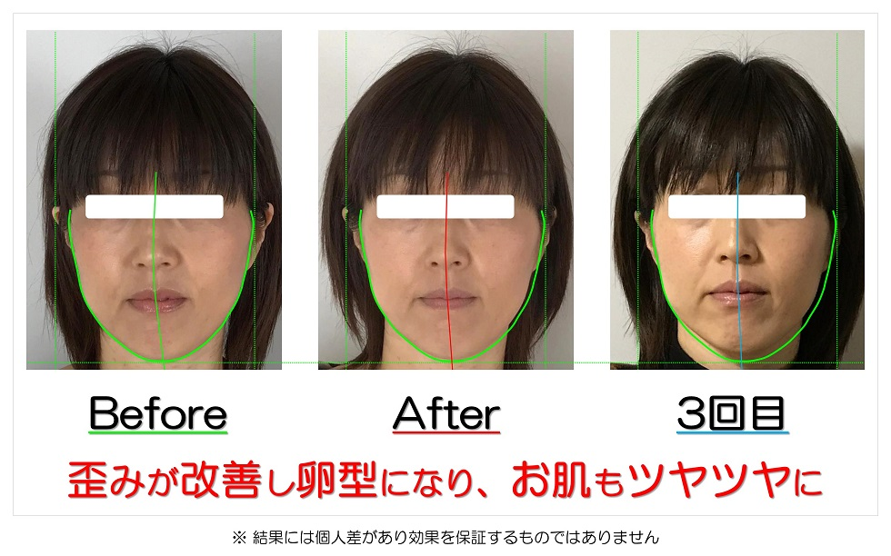 滋賀県守山市のフェイシャルエステ 歪みが改善し卵型になり、お肌もツヤツヤに