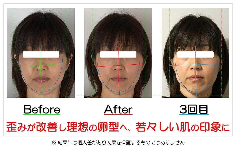 滋賀県守山市の痛くない小顔矯正&エイジングケア専門サロン プリュムレーヴ 歪みが改善し理想の卵型へ、若々しい肌の印象に