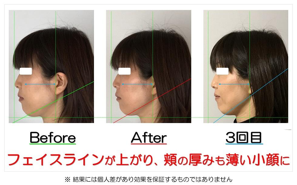 滋賀県守山市の痛くない小顔矯正&エイジングケア専門サロン プリュムレーヴ フェイスラインが上がり、頬の厚みも薄い小顔に