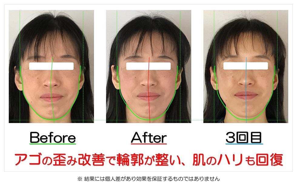 滋賀県守山市のフェイシャルエステ アゴの歪み改善で輪郭が整い、肌のハリも回復