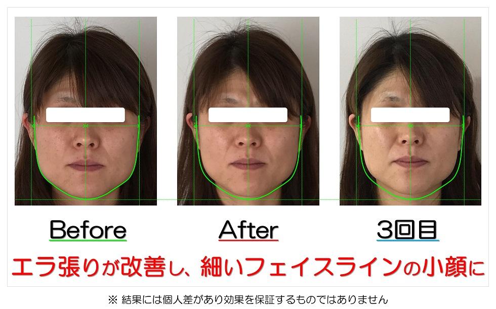 滋賀県守山市の痛くない小顔矯正&エイジングケア専門サロン プリュムレーヴ エラ張りが改善し、細いフェイスラインの小顔に