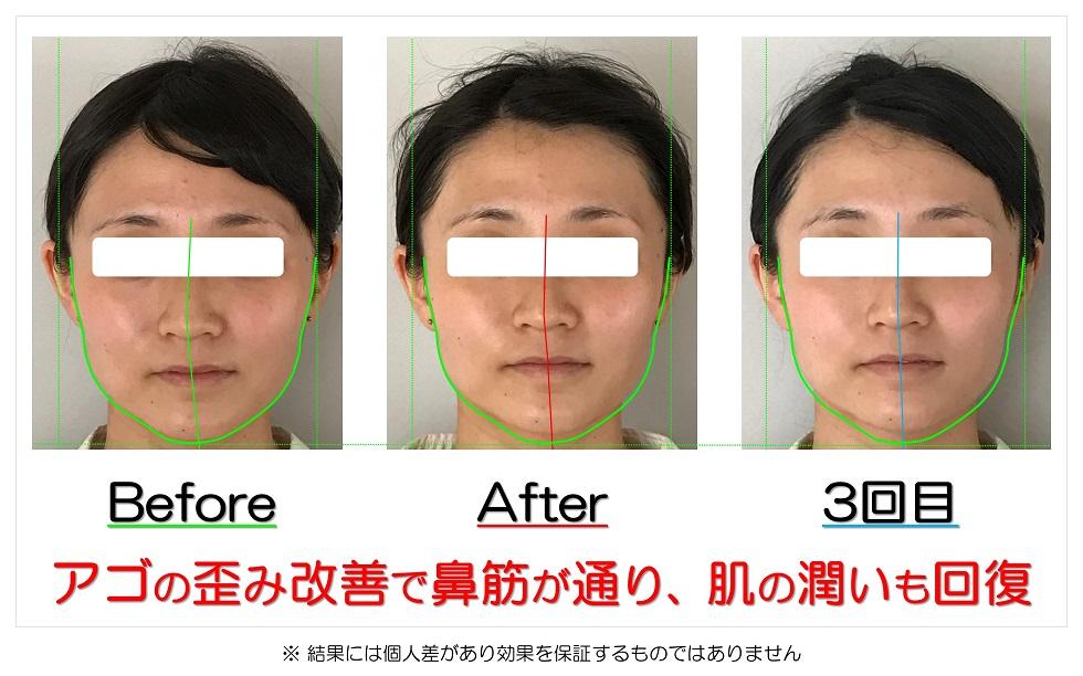 滋賀県守山市のフェイシャルエステ アゴの歪み改善で鼻筋が通り、肌の潤いも回復