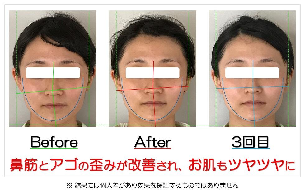 滋賀県守山市の痛くない小顔矯正&エイジングケア専門サロン プリュムレーヴ 鼻筋とアゴの歪みが改善され、お肌もツヤツヤに