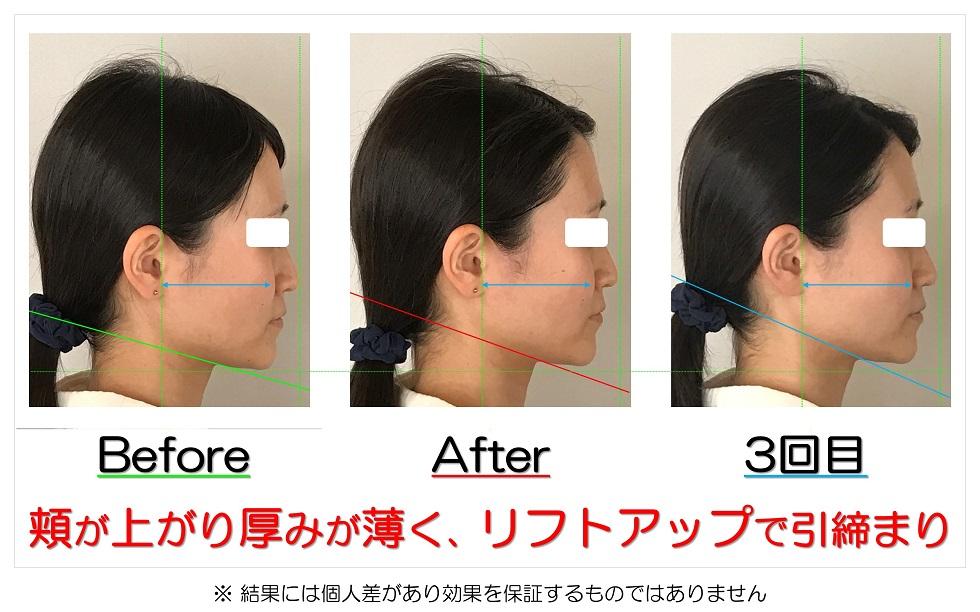 滋賀県守山市の痛くない小顔矯正&エイジングケア専門サロン プリュムレーヴ 頬が上がり厚みが薄く、リフトアップで引締まり