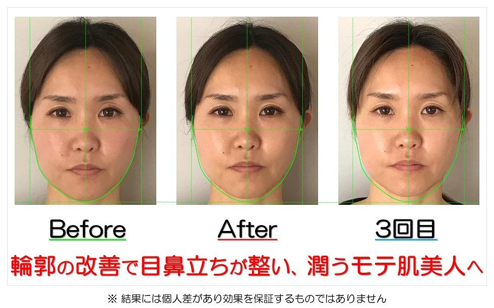 滋賀県守山市の痛くない小顔矯正&エイジングケア専門サロン プリュムレーヴ 輪郭の改善で目鼻立ちが整い、潤うモテ肌美人へ