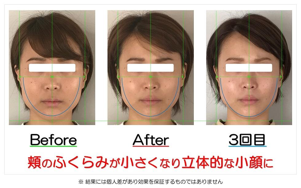 滋賀県守山市のフェイシャルエステ 頬のふくらみが小さくなり立体的な小顔に