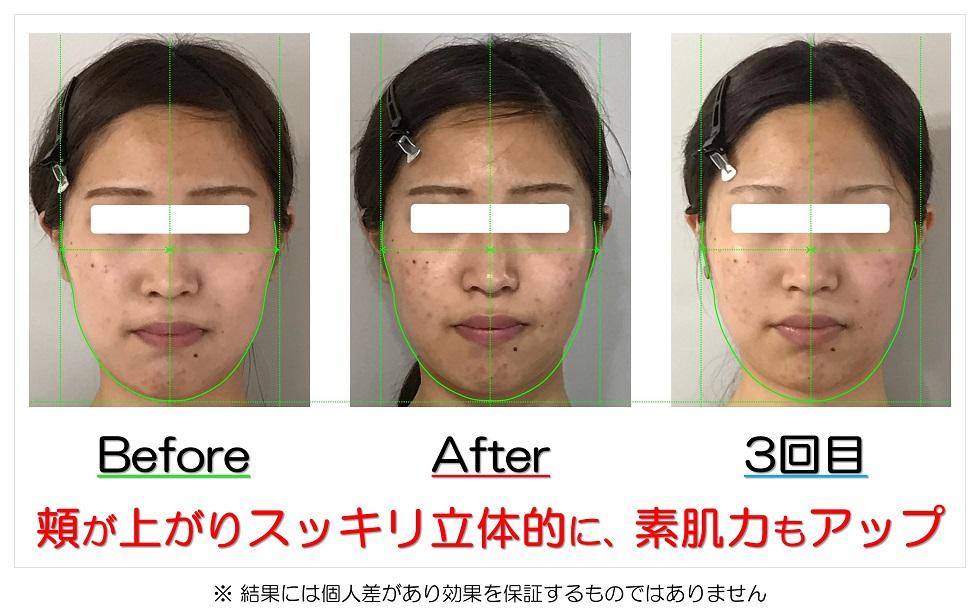 滋賀県守山市の痛くない小顔矯正&エイジングケア専門サロン プリュムレーヴ 頬が上がりスッキリ立体的に、素肌力もアップ