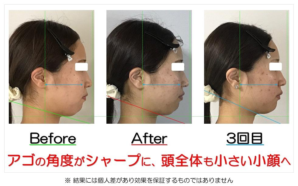 滋賀県守山市の痛くない小顔矯正&エイジングケア専門サロン プリュムレーヴ アゴの角度がシャープに、頭全体も小さい小顔へ