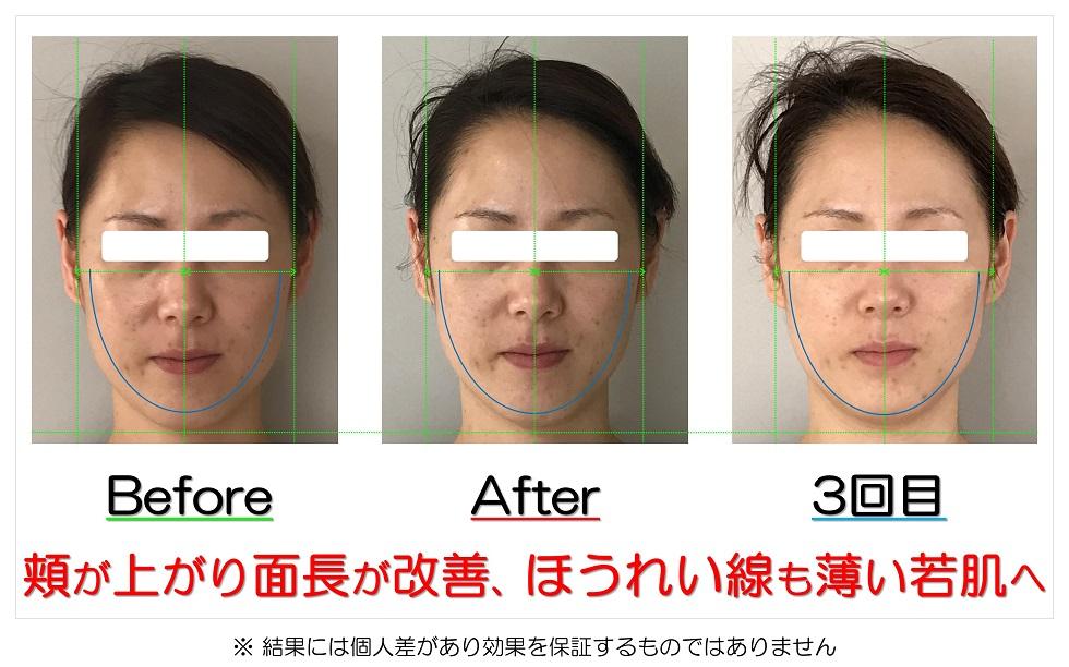滋賀県守山市の痛くない小顔矯正&エイジングケア専門サロン プリュムレーヴ 頬が上がり面長が改善、ほうれい線も薄い若肌へ
