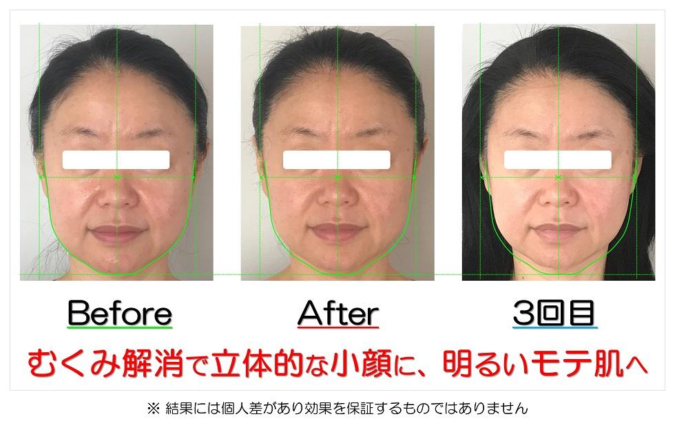 滋賀県守山市のフェイシャルエステ プリュムレーヴ むくみ解消で立体的な小顔に、明るいモチ肌へ
