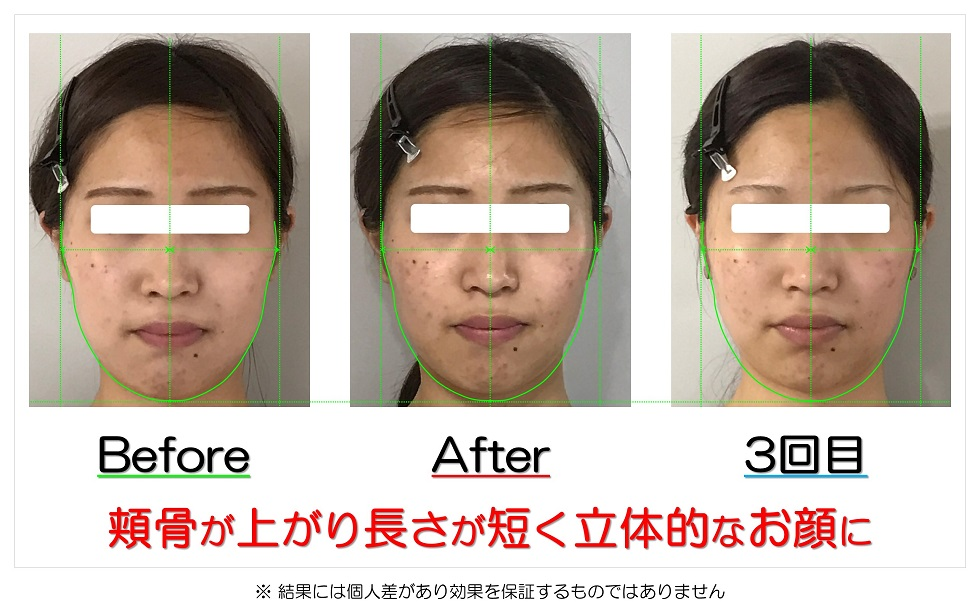 滋賀県守山市のフェイシャルエステ 頬骨が上がり長さが短く立体的なお顔に