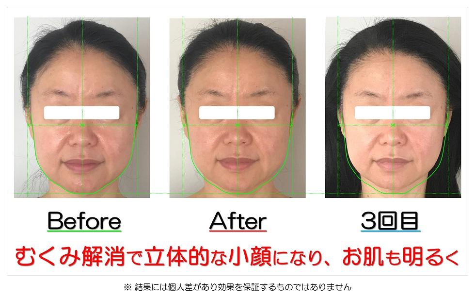 滋賀県守山市のフェイシャルエステ むくみ解消で立体的な小顔になり、お肌も明るく