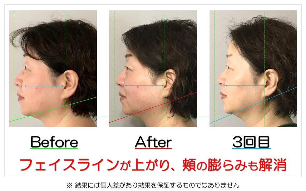 滋賀県守山市のフェイシャルエステ フェイスラインが上がり、頬の膨らみも解消