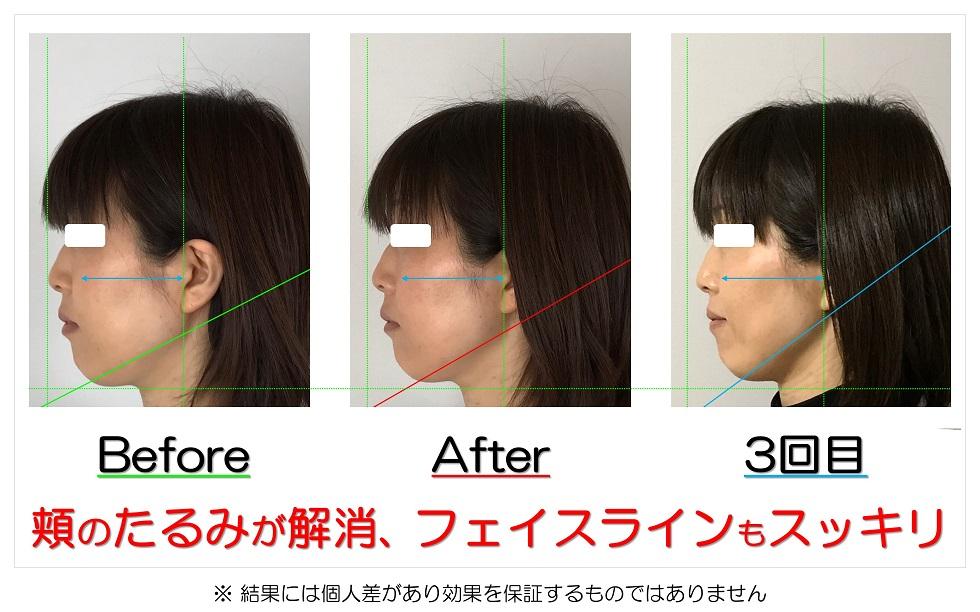 滋賀県守山市のフェイシャルエステ 頬のたるみが解消、フェイスラインもスッキリ
