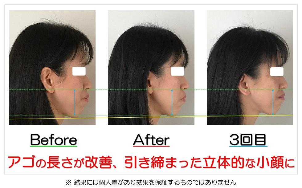 滋賀県守山市のフェイシャルエステ アゴの長さが改善、引き締まった立体的な小顔に