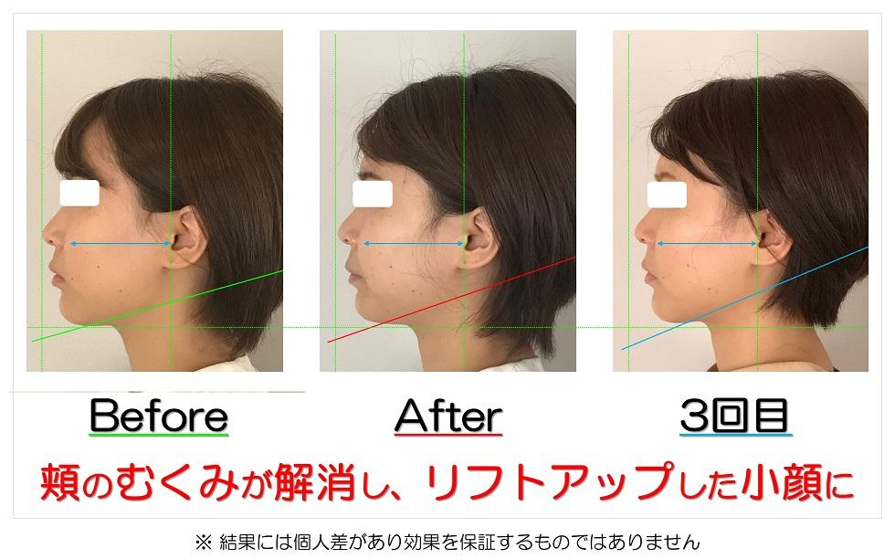 滋賀県守山市のフェイシャルエステ 頬のむくみが解消し、リフトアップした小顔に