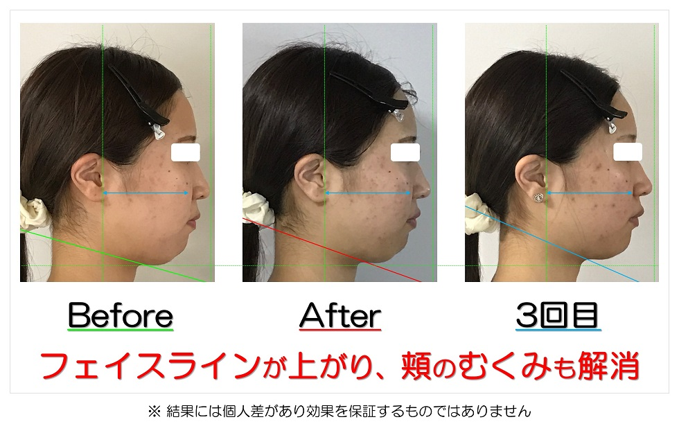 滋賀県守山市のフェイシャルエステ フェイスラインが上がり、頬のむくみも解消