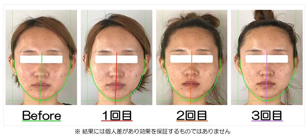 ビフォーアフター写真 | 滋賀県守山市のフェイシャルエステ プリュムレーヴ | あごの歪みと頬骨の出っ張りが改善して左右対称の輪郭へ