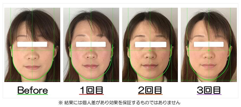 ビフォーアフター写真 | 滋賀県守山市のフェイシャルエステ プリュムレーヴ | 頬骨の上がりとたるみ改善で、輪郭が引締まり左右対称に