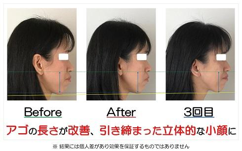 アゴの長さが改善、引き締まった立体的な小顔に