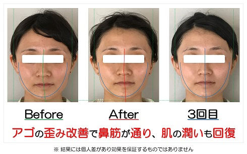 アゴの歪み改善で鼻筋が通り、肌の潤いも回復