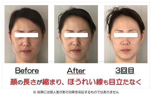 顔の長さが縮まり、ほうれい線も目立たなく