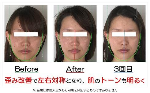 歪み改善で左右対称となり、肌のトーンも明るく